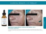 SkinCeuticals C E Ferulic before and after photos. skinceutical serum, skinceuticals serum, ce ferulic skinceuticals