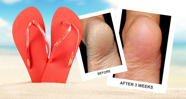Transform Cracked Heels Into Sandal-Ready Feet