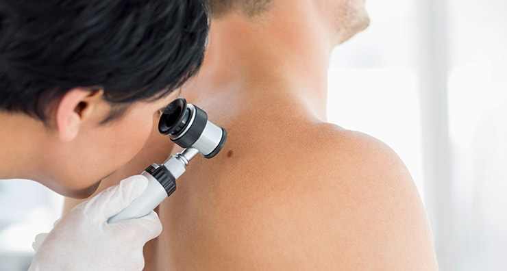 5 Questions Your Dermatologist Gets Asked Again and Again