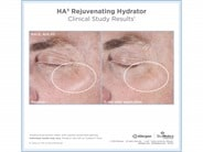 SkinMedica HA5 Rejuvenating Hydrator - 2.0 oz