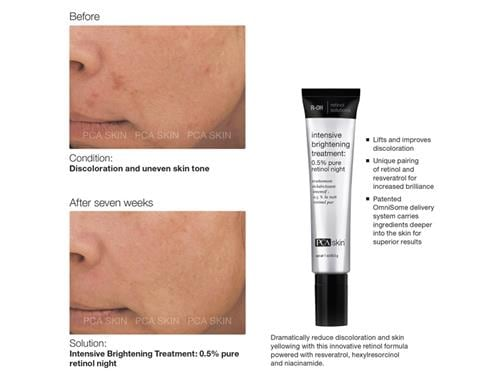 Pca Skin Intensive Brightening Treatment Lovelyskin