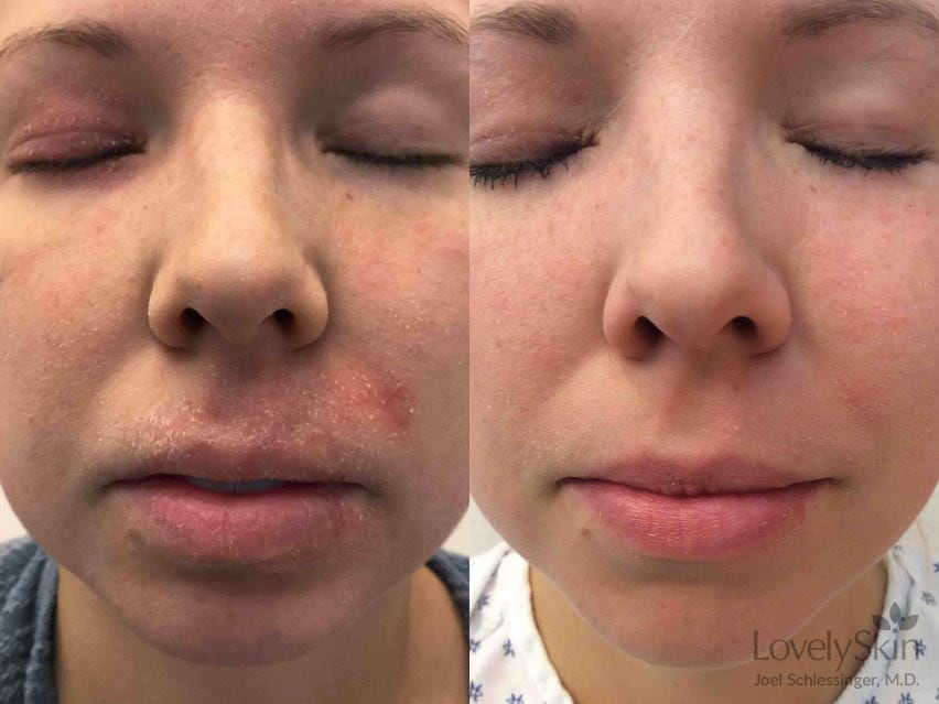 FixMySkin Before and After Photo